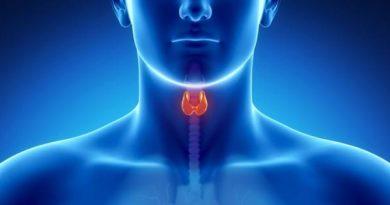 Underactive Thyroid Hypothyroidism
